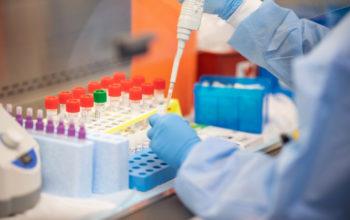 173 случая коронавируса выявлено за сутки в Оренбургской области
